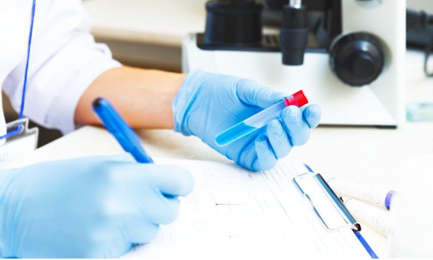 Koronavírus antitest vizsgálat